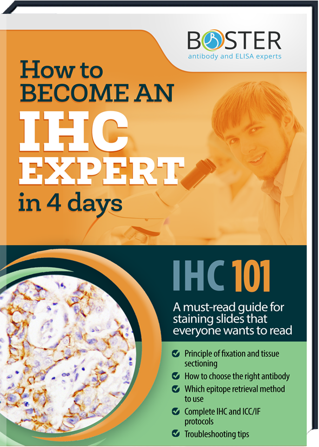 Get your free Handbook about the IHC-Tecnique