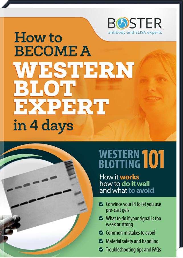 Get your free Handbook about the Western Blot-Tecnique